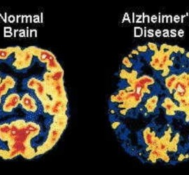 alzheimers-large